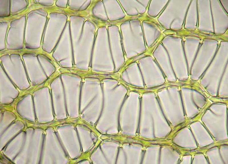 Cells In Sphagnum Leaf  Chloroplasts