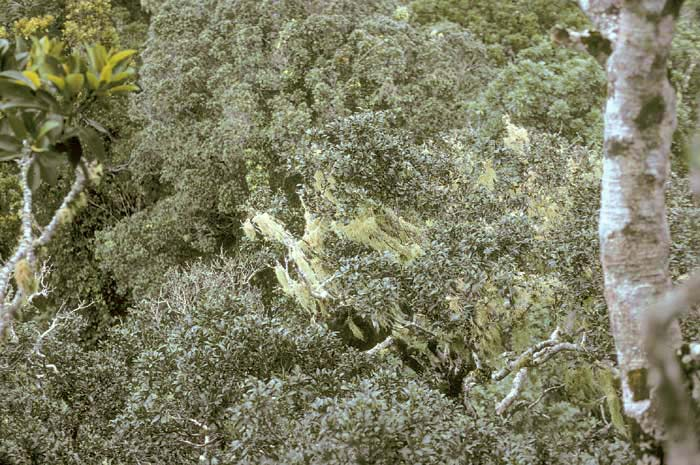 Lichen+sclerosus+labia